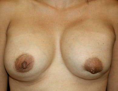Revision Breast Surgery Gallery - Patient 39244076 - Image 1