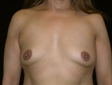 Breast Augmentation Gallery - Patient 39244077 - Image 1