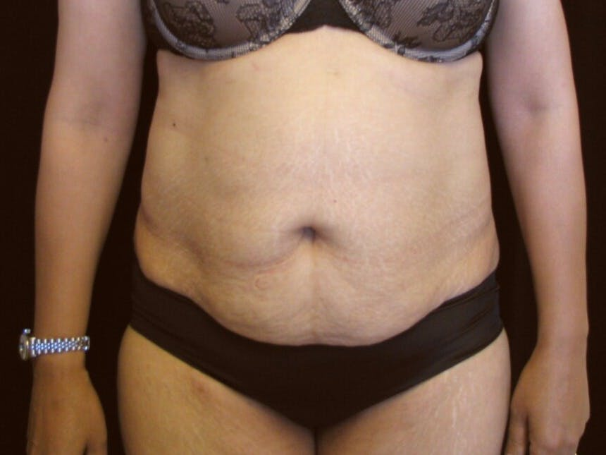 Tummy Tuck Gallery - Patient 39244086 - Image 1