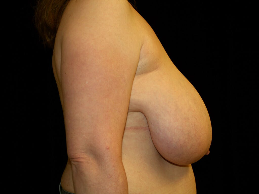 Breast Reduction T Incision Gallery - Patient 39244081 - Image 5