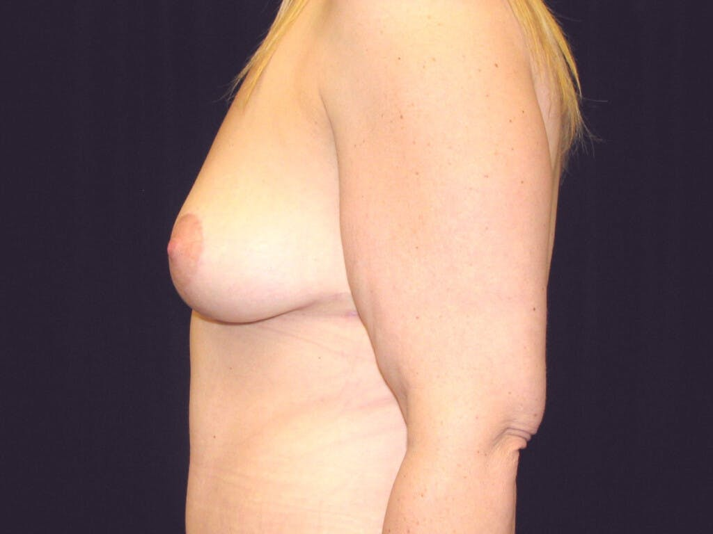 Vertical and Inverted T Breast Lift Gallery - Patient 39244078 - Image 10