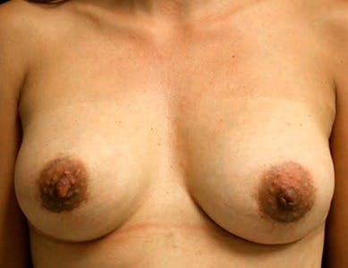 Revision Breast Surgery Gallery - Patient 39244076 - Image 2