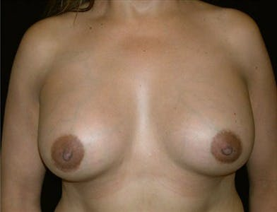 Breast Augmentation Gallery - Patient 39244077 - Image 2