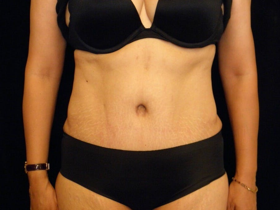 Tummy Tuck Gallery - Patient 39244086 - Image 2