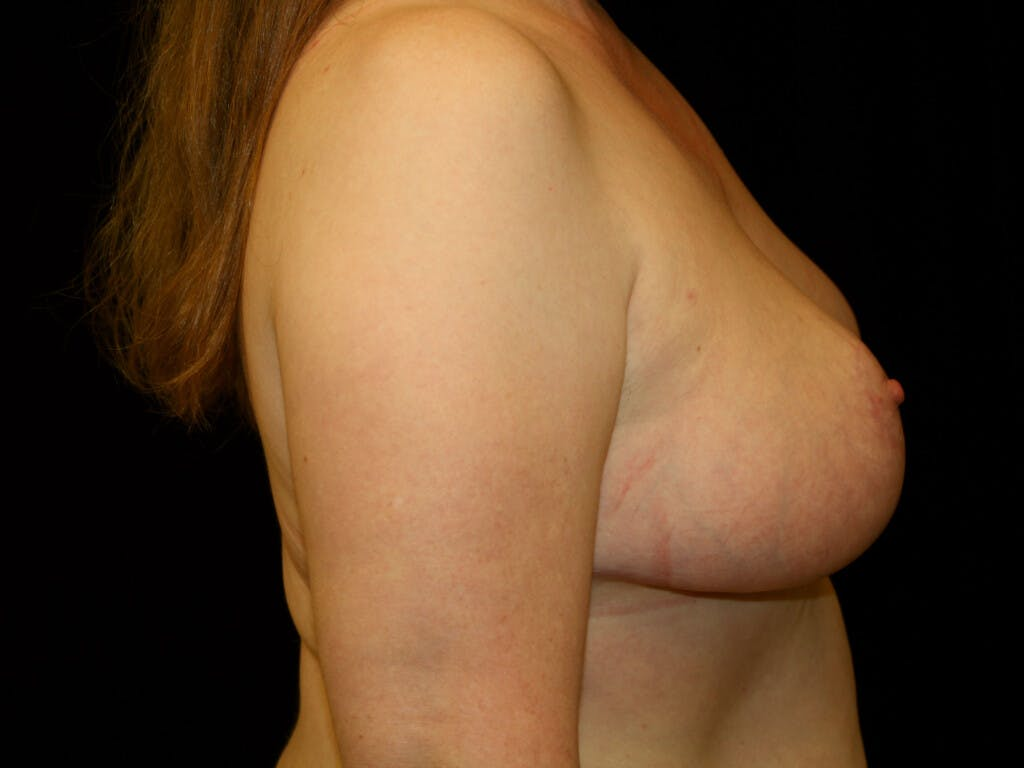 Breast Reduction T Incision Gallery - Patient 39244081 - Image 6