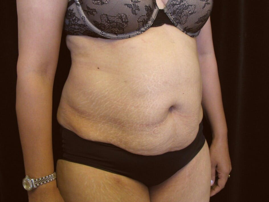 Tummy Tuck Gallery - Patient 39244086 - Image 3