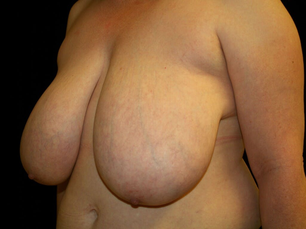 Breast Reduction T Incision Gallery - Patient 39244081 - Image 7