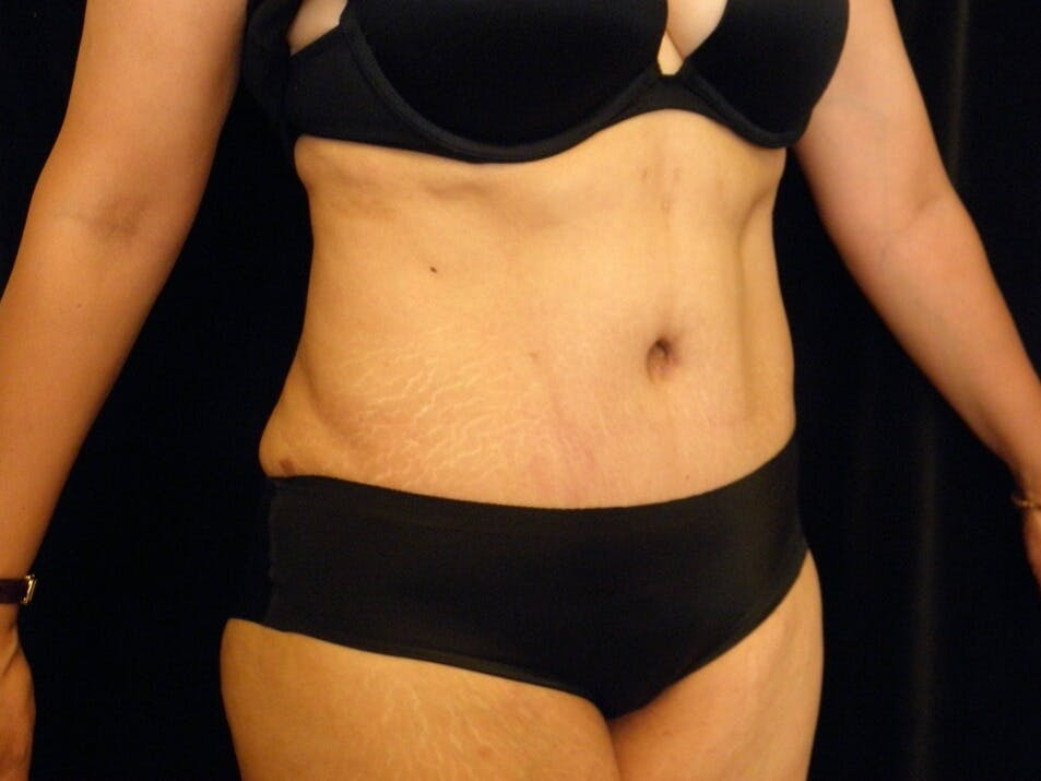 Tummy Tuck Gallery - Patient 39244086 - Image 4