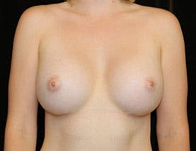 Revision Breast Surgery Gallery - Patient 39244082 - Image 1