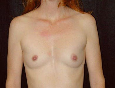 Breast Augmentation Gallery - Patient 39244080 - Image 1