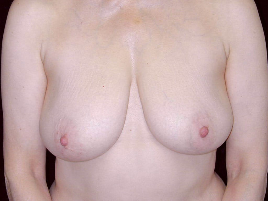 Vertical and Inverted T Breast Lift Gallery - Patient 39244087 - Image 1