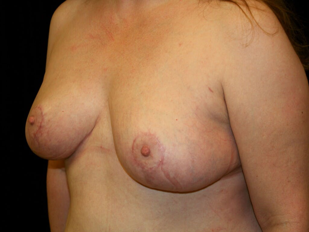 Breast Reduction T Incision Gallery - Patient 39244081 - Image 8