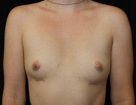 Revision Breast Surgery Gallery - Patient 39244082 - Image 2