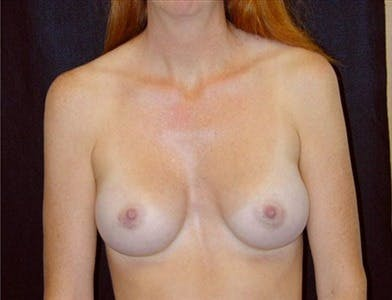 Breast Augmentation Gallery - Patient 39244080 - Image 2