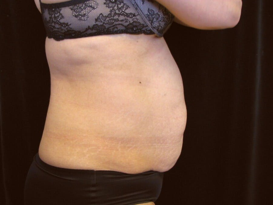 Tummy Tuck Gallery - Patient 39244086 - Image 5