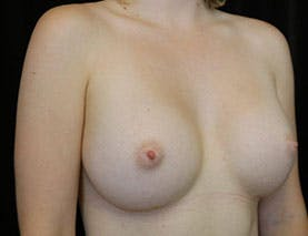 Revision Breast Surgery Gallery - Patient 39244082 - Image 3