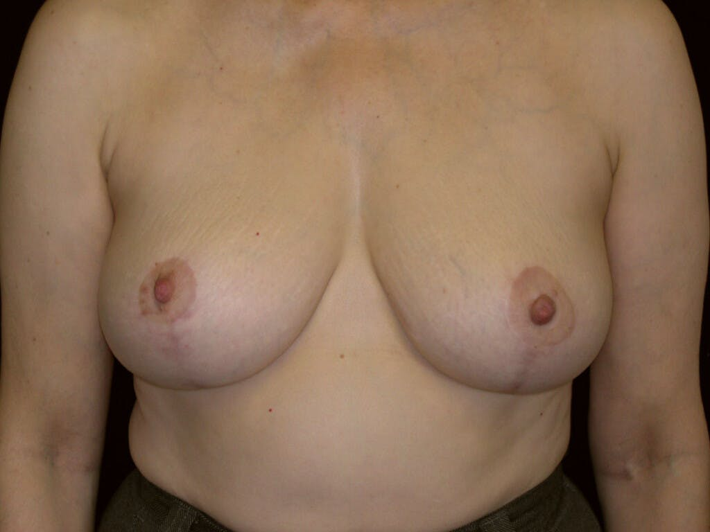 Vertical and Inverted T Breast Lift Gallery - Patient 39244087 - Image 2