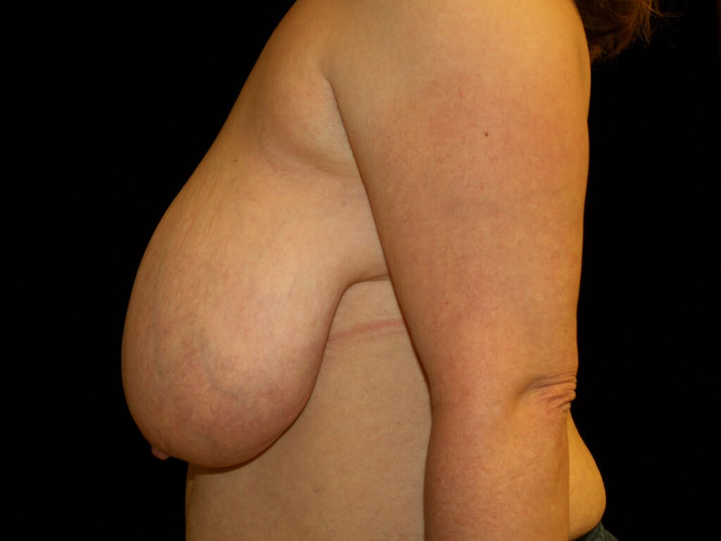 Breast Reduction T Incision Gallery - Patient 39244081 - Image 9