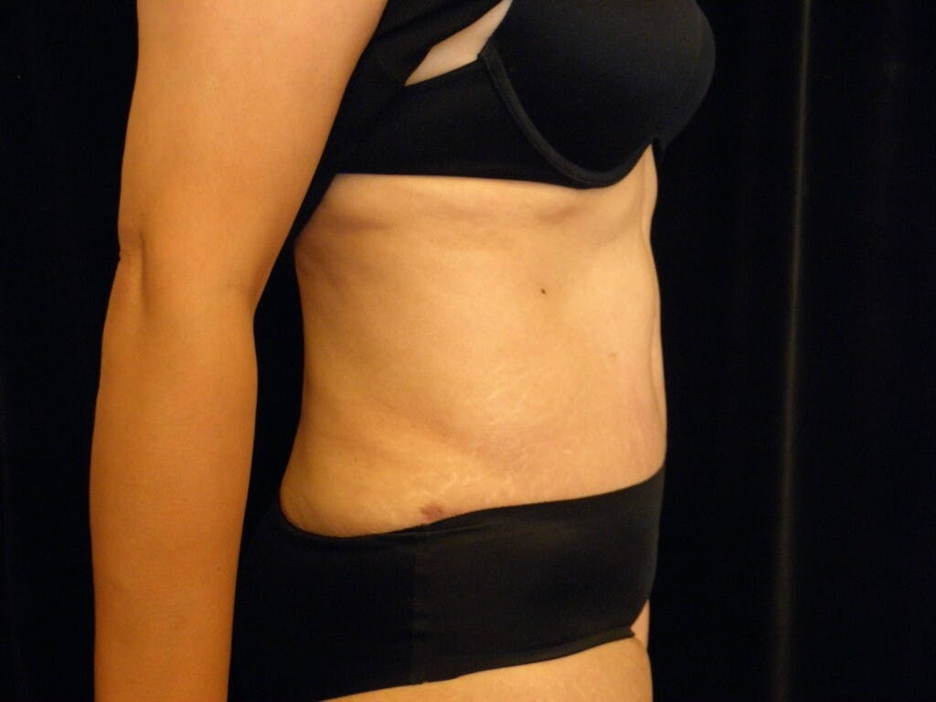 Tummy Tuck Gallery - Patient 39244086 - Image 6