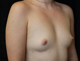 Revision Breast Surgery Gallery - Patient 39244082 - Image 4