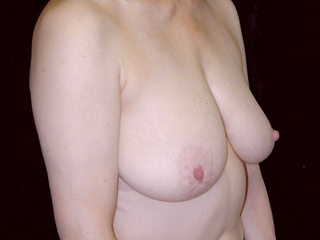 Vertical and Inverted T Breast Lift Gallery - Patient 39244087 - Image 3
