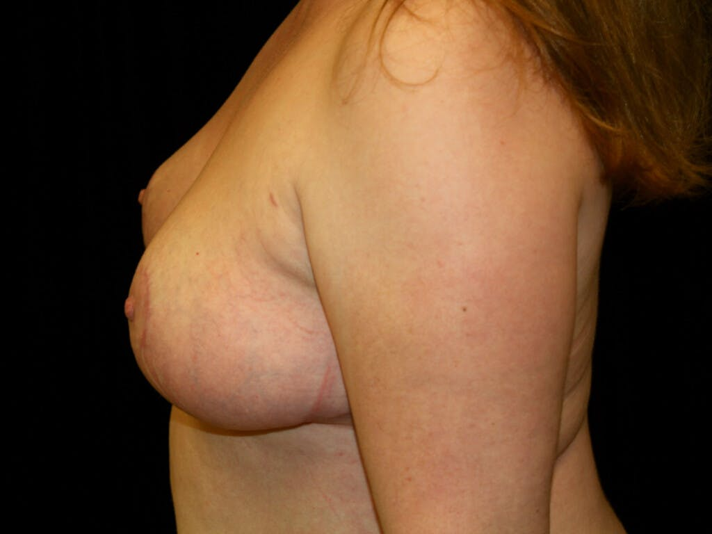 Breast Reduction T Incision Gallery - Patient 39244081 - Image 10