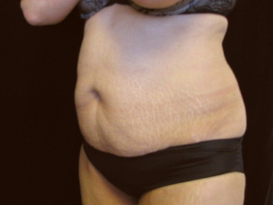 Tummy Tuck Gallery - Patient 39244086 - Image 7