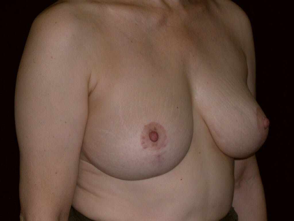 Vertical and Inverted T Breast Lift Gallery - Patient 39244087 - Image 4