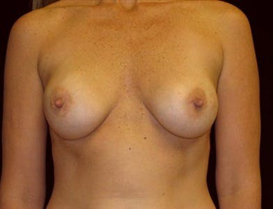 Breast Augmentation Gallery - Patient 39244083 - Image 1