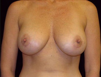 Breast Augmentation Gallery - Patient 39244083 - Image 2