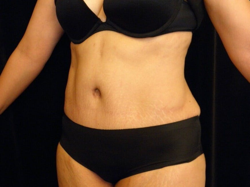 Tummy Tuck Gallery - Patient 39244086 - Image 8