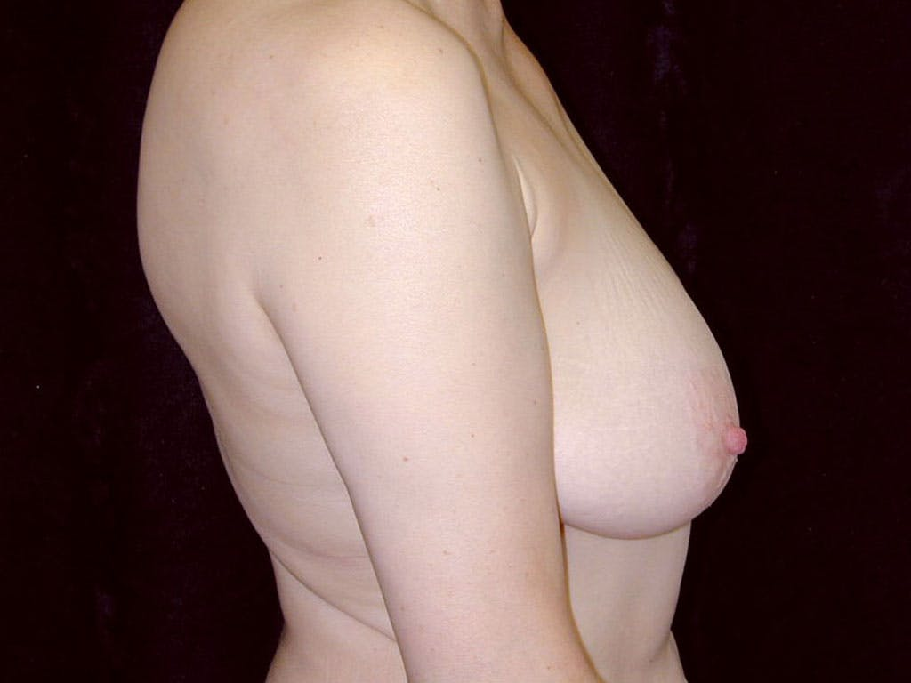 Vertical and Inverted T Breast Lift Gallery - Patient 39244087 - Image 5