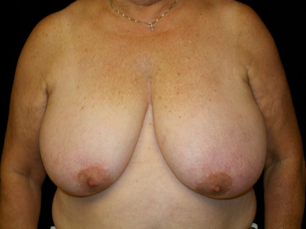 Breast Reduction T Incision Gallery - Patient 39244090 - Image 1
