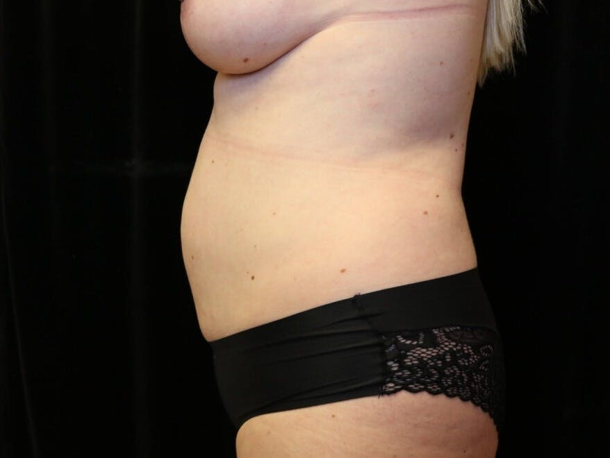 Tummy Tuck Gallery - Patient 39244086 - Image 9