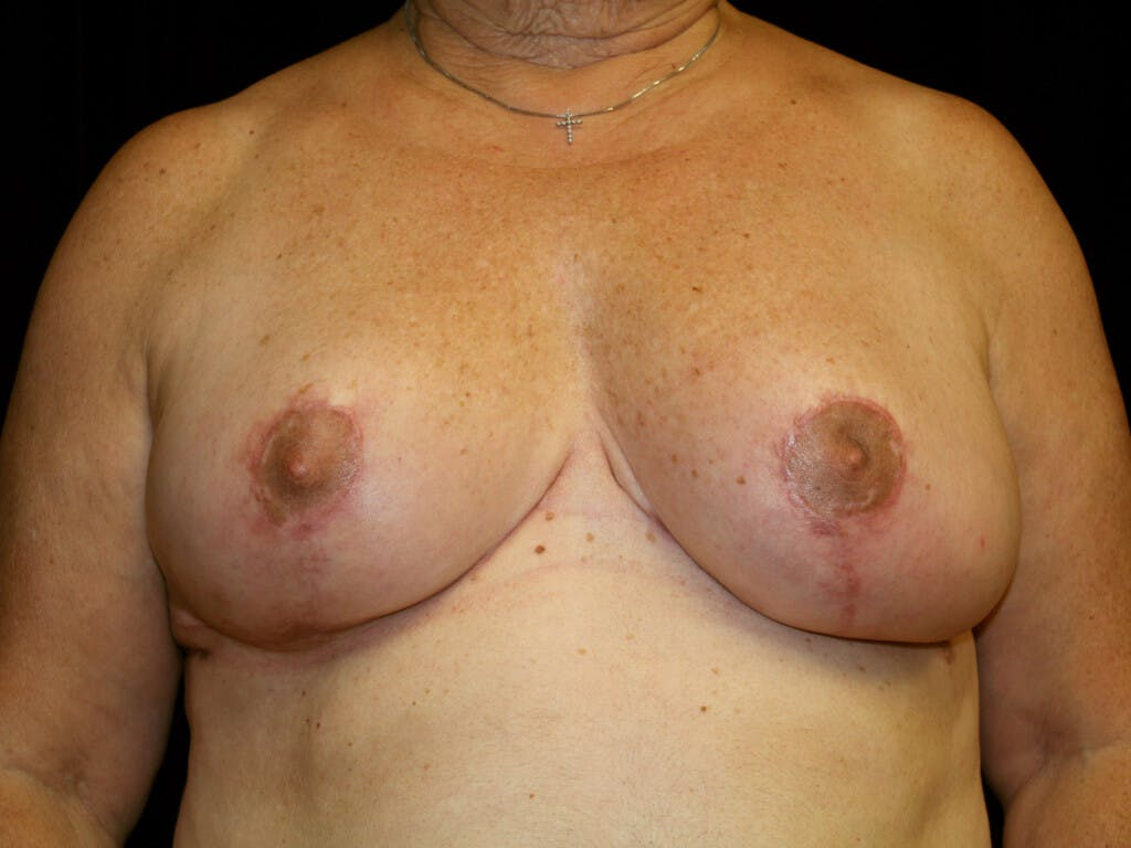Breast Reduction T Incision Gallery - Patient 39244090 - Image 2
