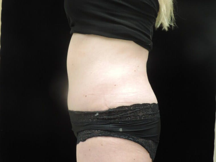 Tummy Tuck Gallery - Patient 39244086 - Image 10