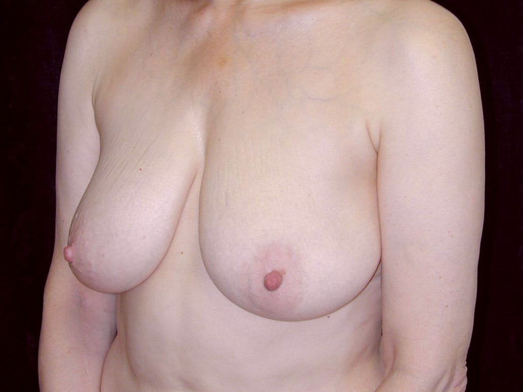 Vertical and Inverted T Breast Lift Gallery - Patient 39244087 - Image 7