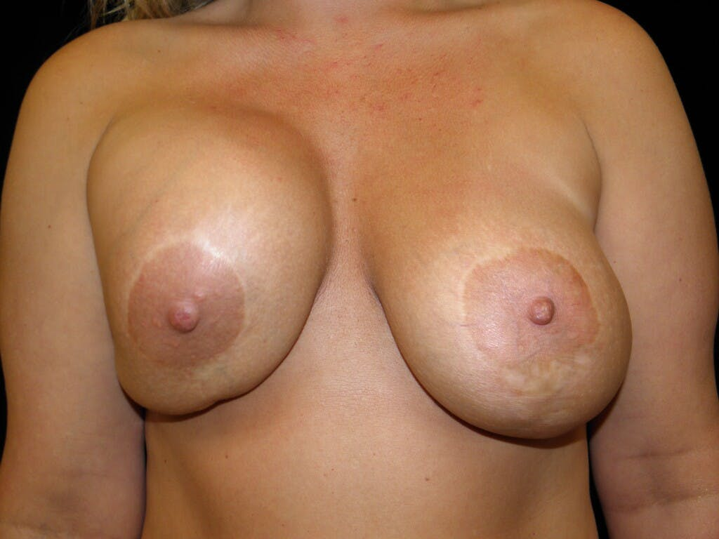 Revision Breast Surgery Gallery - Patient 39244093 - Image 1