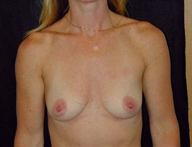 Breast Augmentation Gallery - Patient 39244085 - Image 1