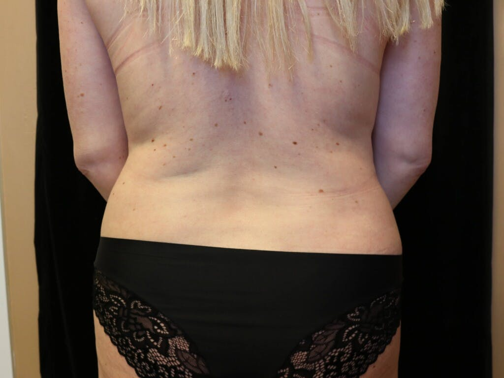 Tummy Tuck Gallery - Patient 39244086 - Image 11