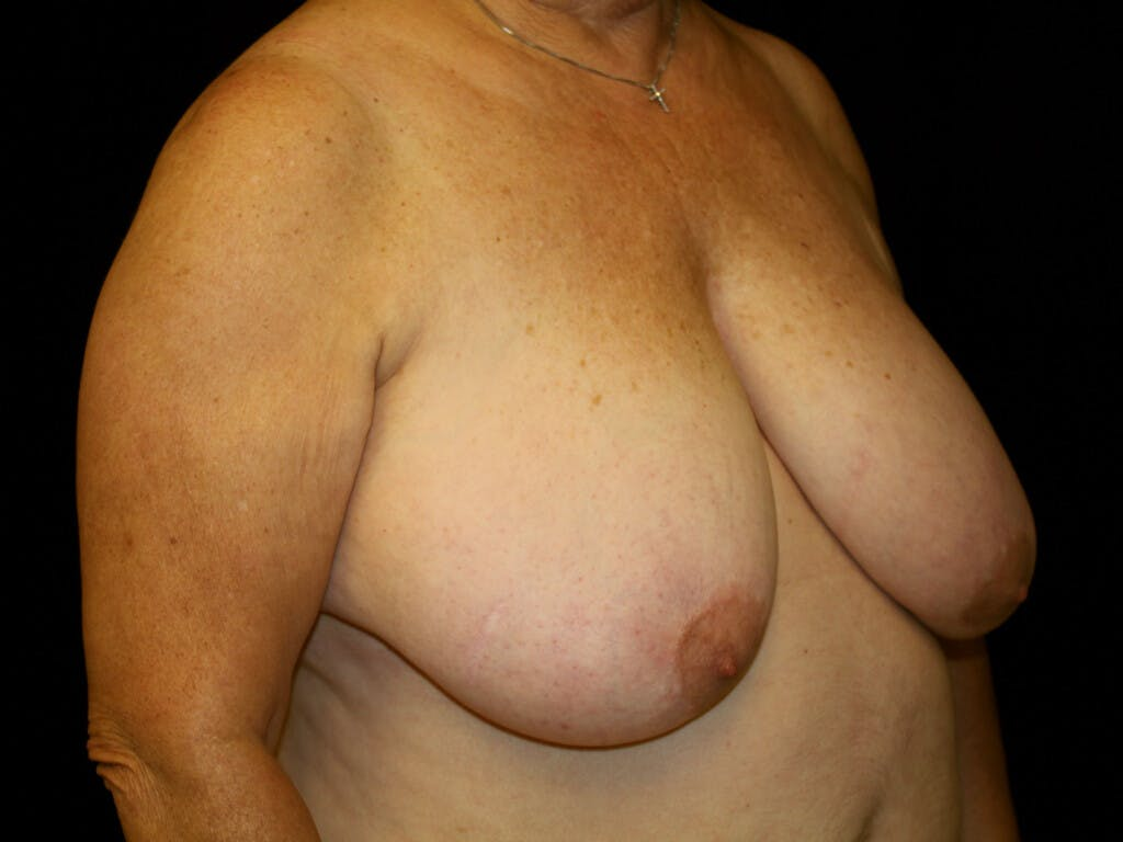 Breast Reduction T Incision Gallery - Patient 39244090 - Image 3
