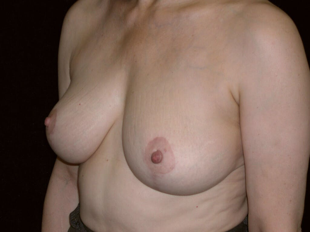 Vertical and Inverted T Breast Lift Gallery - Patient 39244087 - Image 8