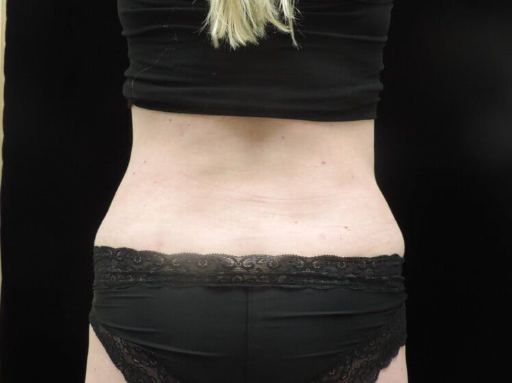 Tummy Tuck Gallery - Patient 39244086 - Image 12