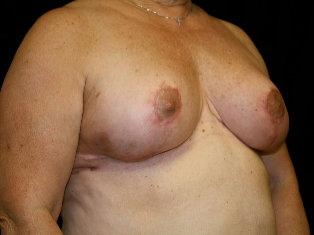Breast Reduction T Incision Gallery - Patient 39244090 - Image 4