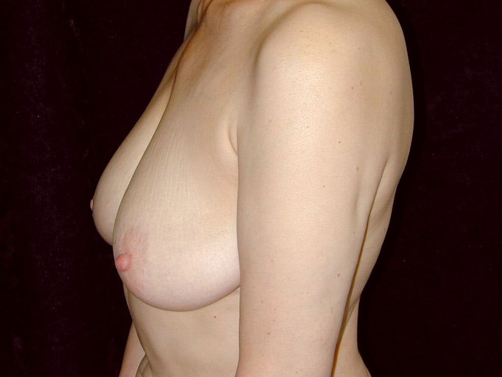 Vertical and Inverted T Breast Lift Gallery - Patient 39244087 - Image 9