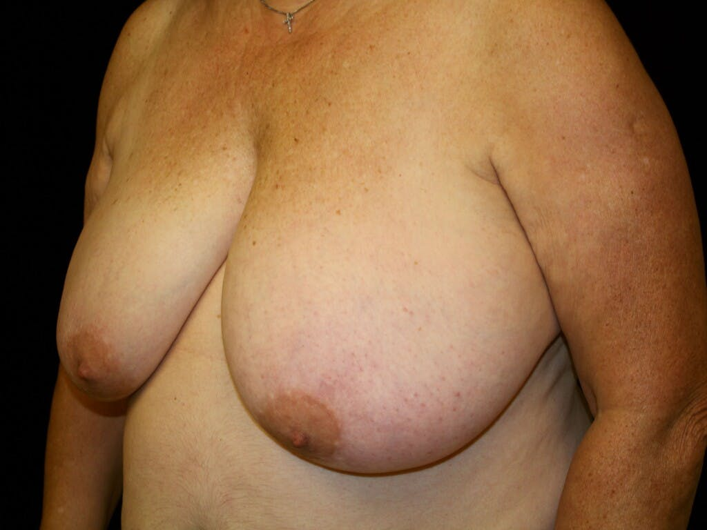 Breast Reduction T Incision Gallery - Patient 39244090 - Image 5