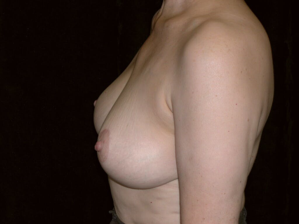 Vertical and Inverted T Breast Lift Gallery - Patient 39244087 - Image 10