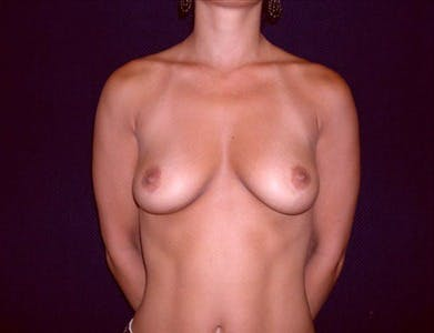 Breast Augmentation Gallery - Patient 39244089 - Image 1