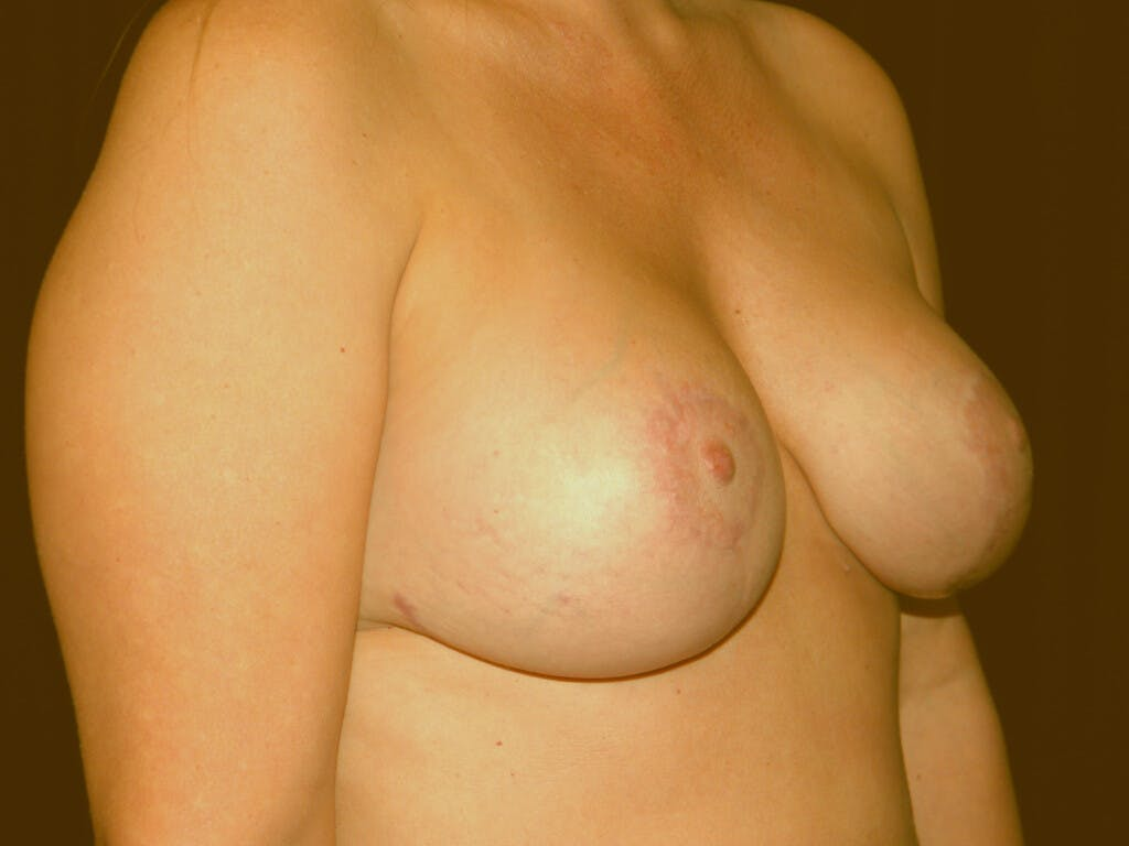 Revision Breast Surgery Gallery - Patient 39244093 - Image 4