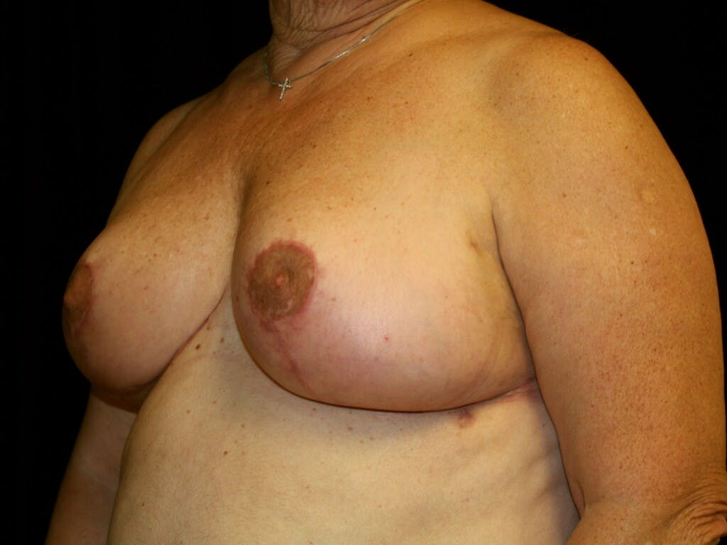 Breast Reduction T Incision Gallery - Patient 39244090 - Image 6